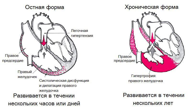 Классификация легочного сердца