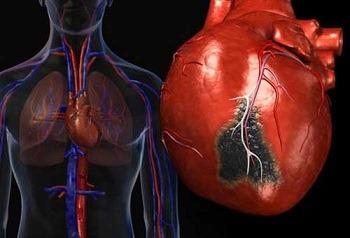 Постинфарктный кардиосклероз: симптомы, осложнения, лечение
