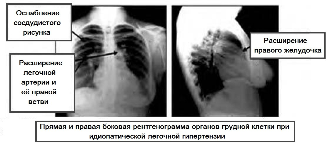 Рентгенограмма при легочной гипертензии