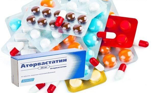 statiny