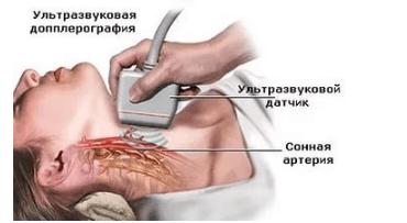 Метод ультразвуковой допплерографии
