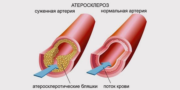 Атеросклероз брюшной аорты: симптомы, диагностика и лечение