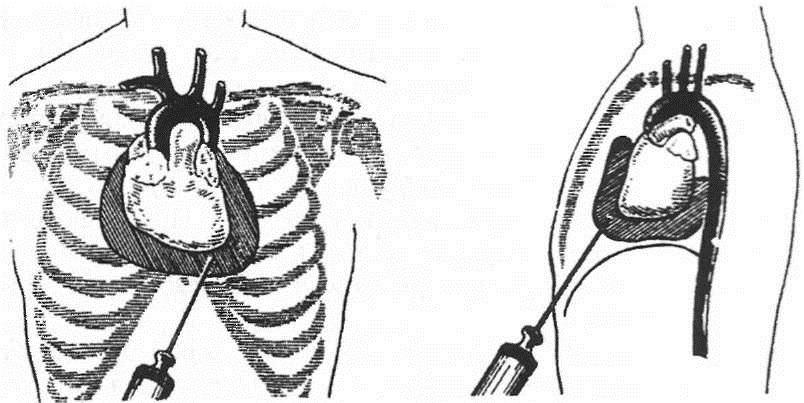 Хирургическое лечение перикарда
