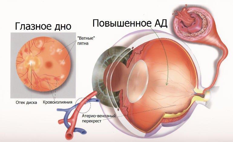 Сетчатка глаза при повышенном АД