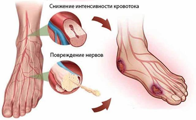 Ангиопатия нижних конечностей при сахарном диабете: симптомы, лечение