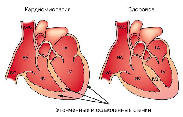 Ишемическая кардиомиопатия: симптомы, диагностика и лечение