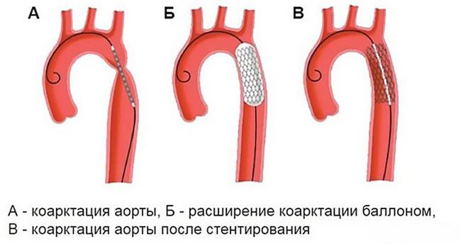 операция при коарктации аорты