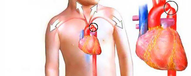 Коарктация аорты у ребенка