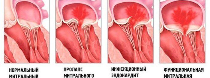 Различные виды патологии митрального клапана