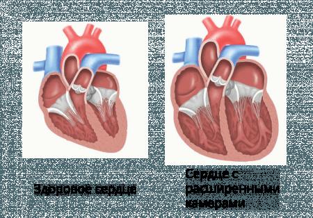 Алкогольная кардиомиопатия - смертельно-опасное заболевание