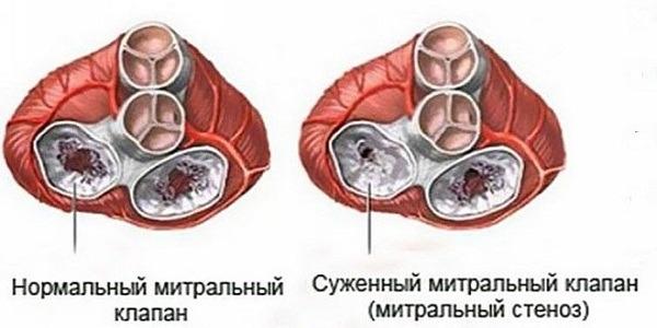 Пороки митрального клапана сердца: классификация, диагностика и ...