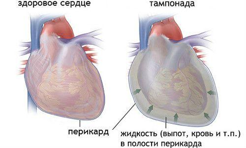 Сравнение здорового сердца и тапмонада