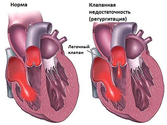 Недостаточность клапана легочной артерии: причины, симптомы и лечение