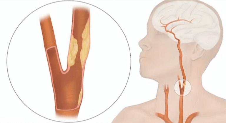 Атеросклероз сосудов шеи: симптомы, диагностика и лечение