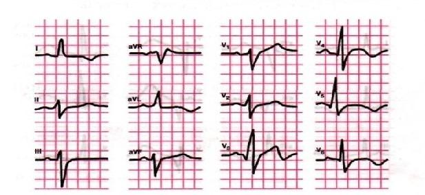 Симптомы микроинфаркта на ЭКГ