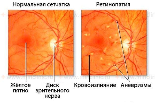Проявления фоновой ретинопатии