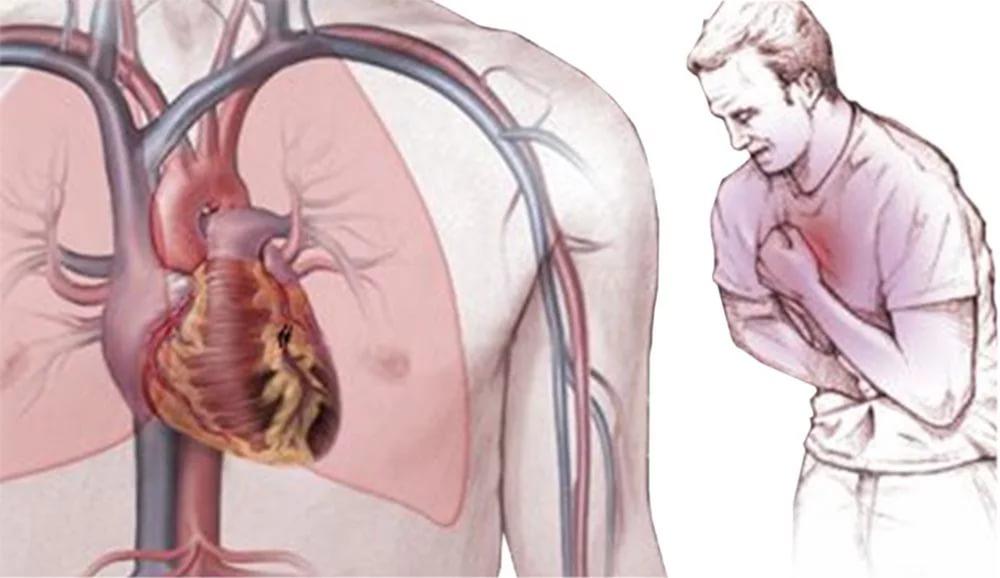 Болевые ощущения при стенокардии