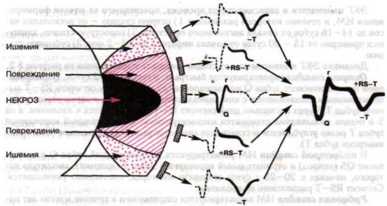 priznaki-infarkta-miokarda-na-ehkg