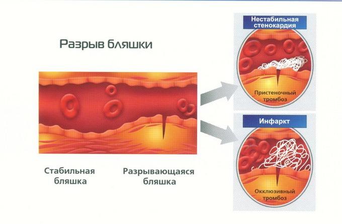 Проявление нестабильной стенокардии