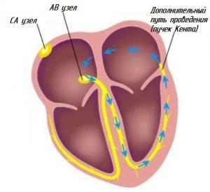 Схема вродедения импульсов в сердце когда синдром ВПВ