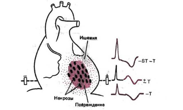 Что такое микроинфаркт и чем он опасен