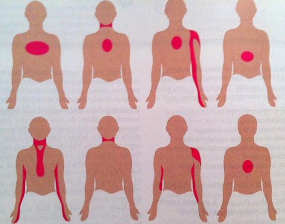 Симптомы микроинфаркта у мужчин и женщин, лечение и профилактика