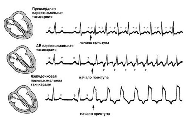 Наджелудочковая тахикардия лечение ЭКГ