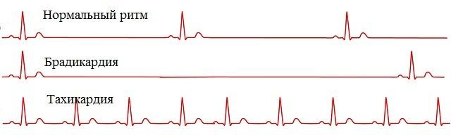 Пульс при брадикардии и тахикардии