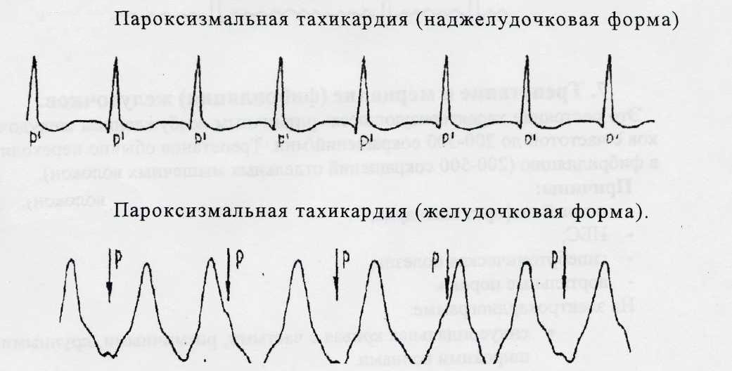 Тахикардия сердца что это такое признаки симптомы и лечение