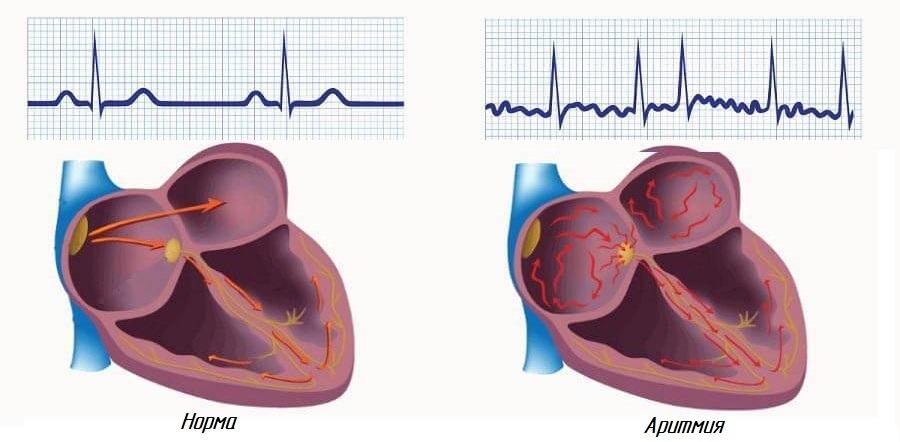Аритмия сердца читать