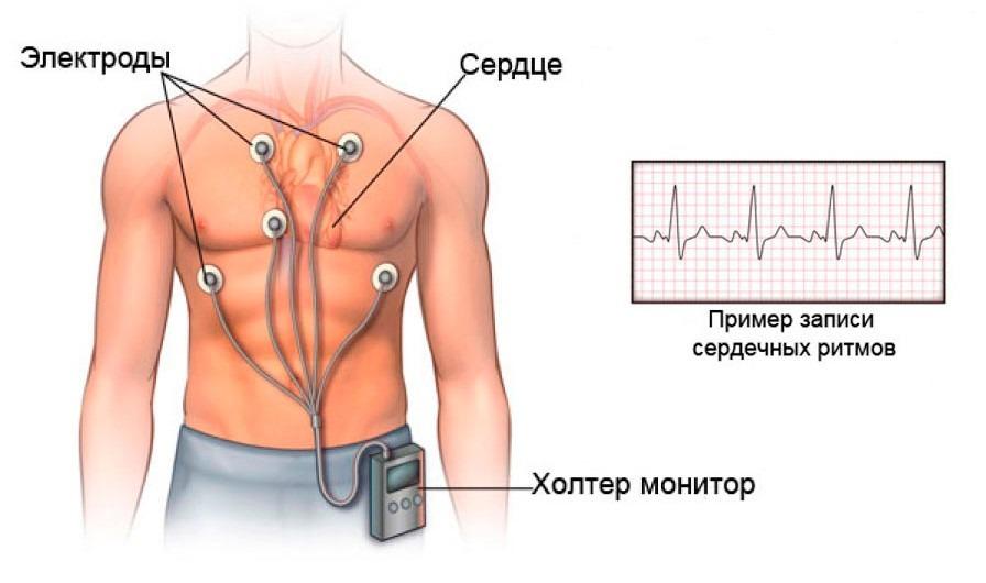 Синусовая аритмия сердца что это такое чем опасна симптомы и экг