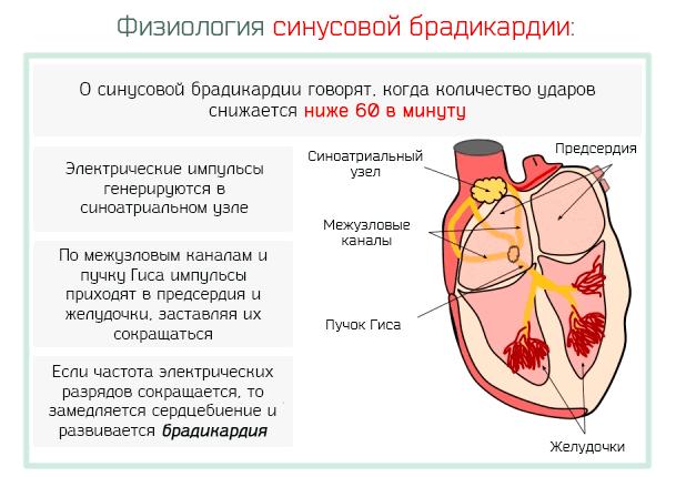 Синусовая брадикардия: виды, симптомы, причины, лечение