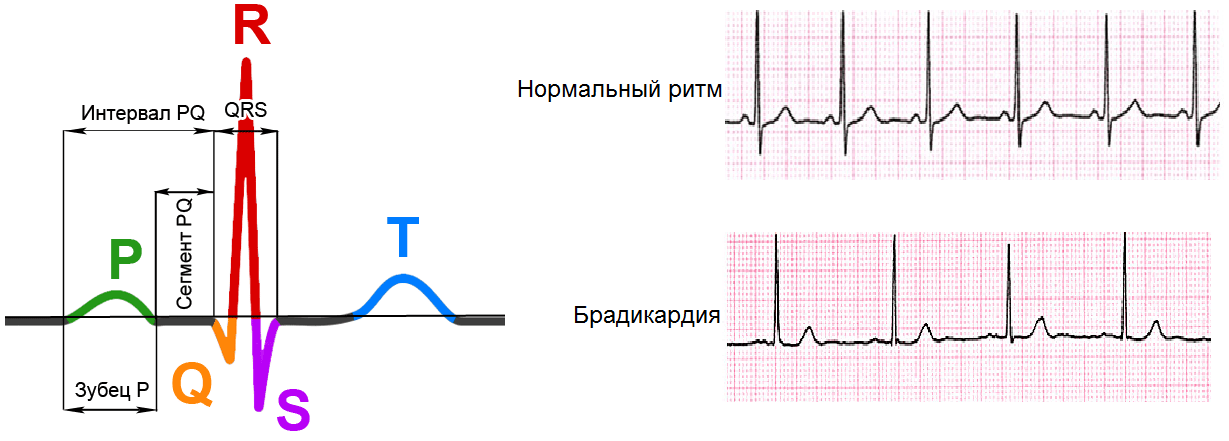ЭКГ при брадикардии