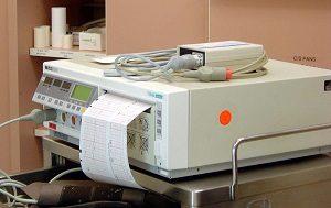 Тахикардия при беременности на ранних и поздних сроках: причины и ...