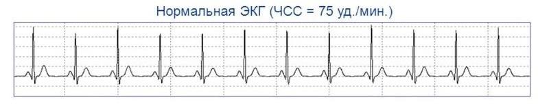 Нормальный синусовый ритм на ЭКГ