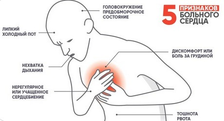 Аритмия сердца: виды, причины, признаки, диагностика, терапия
