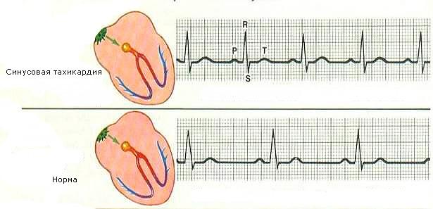 Как лечится тахикардия сердца
