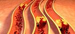 Отрыв тромба: виды, причины, симптомы и последствия острых состояний