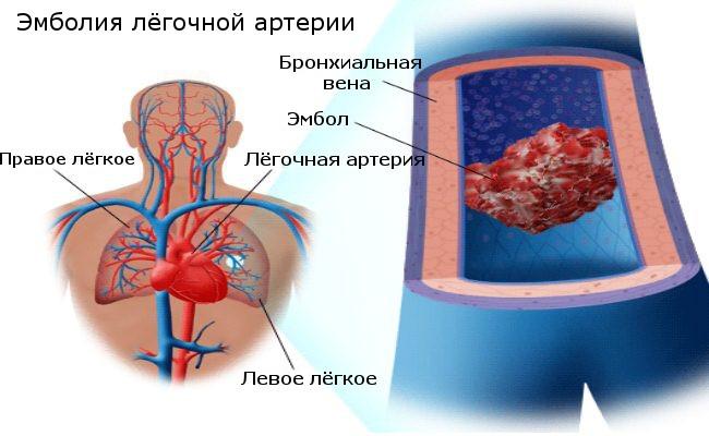 Что делать, если оторвался тромб: причины, диагностика и лечение