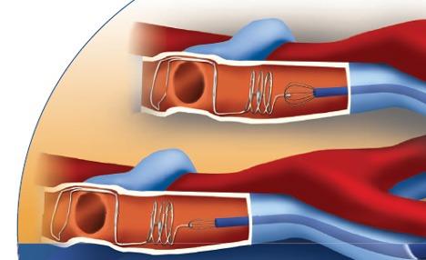 Кава-фильтр при операции тромбоза
