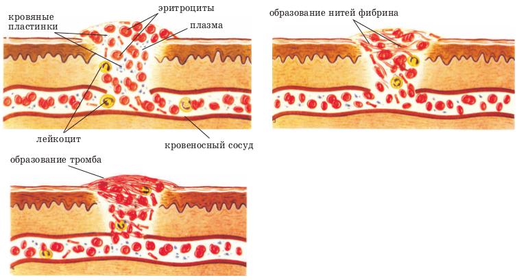 Профилактика тромбов в сосудах