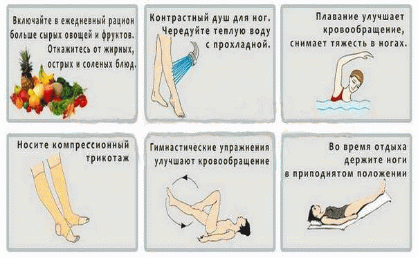 Профилактика тромбоза глубоких вен нижних конечностей