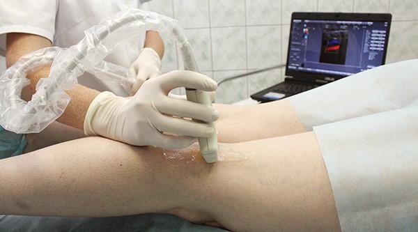 Триплексное ультразвуковое сканирование сосудов ног