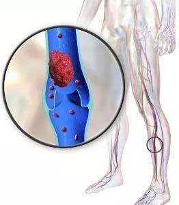 Как распознать тромб в сосудах: симптомы, анализы, диагностика