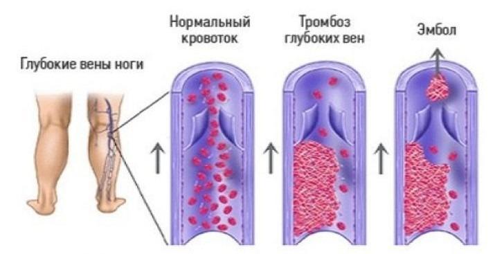 Чем опасен тромбоз глубоких вен нижних конечностей