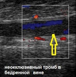 Анализ на тромбы в сосудах