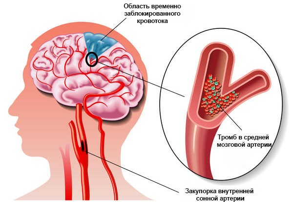 Тромб в головном мозге лечение