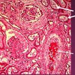 Структура гиалинового тромб