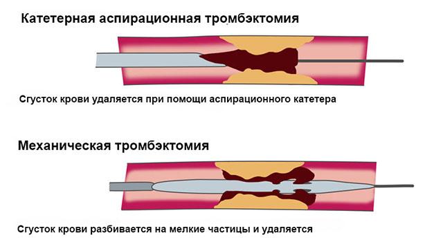 Виды Тромбэктомии