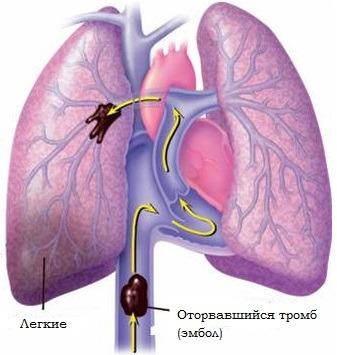 Тромб в легких: причины, симптомы, лечение и профилактика